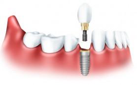 Протезирование зубов. Зачем необходимо протезирование зубов